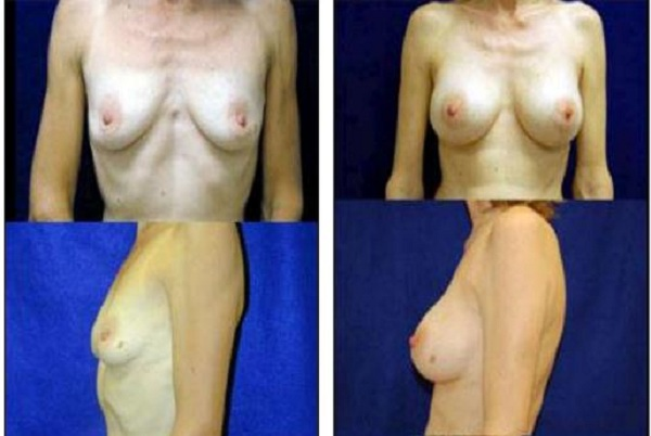 Breast_Augmentation_Case_890