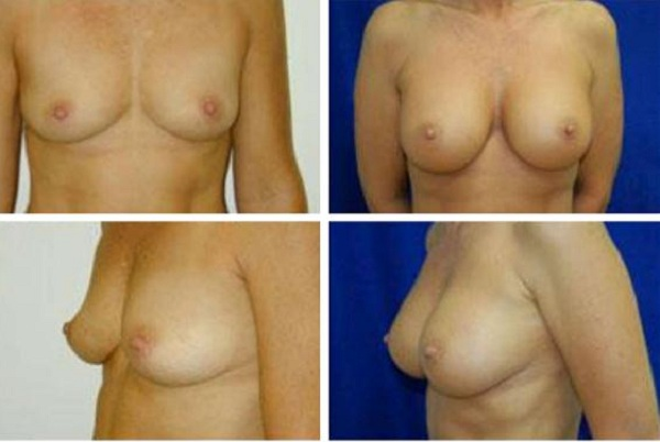 Breast_Augmentation_Case_893