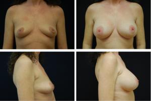 Breast_Augmentation_Case_8972