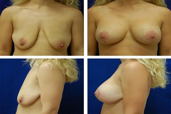 Breast_Augmentation_Case_9172