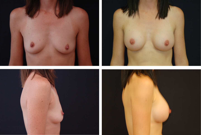 Breast_Augmentation_Case_94431