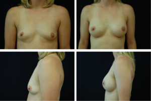 Breast_Augmentation_Case_9478