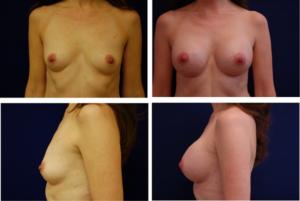 Breast_Augmentation_Case_96011
