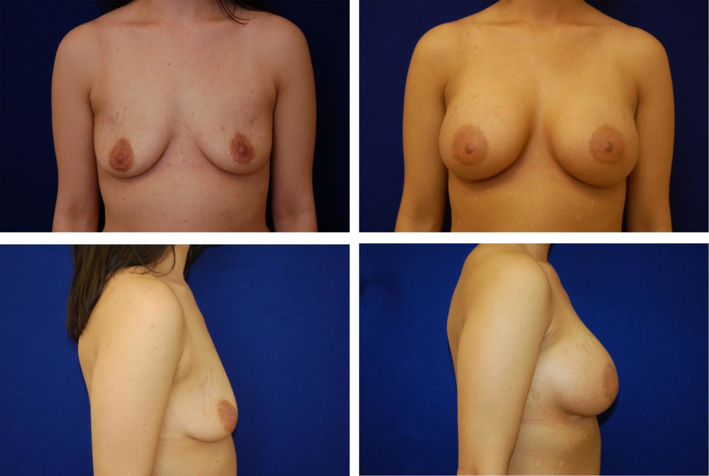 Breast_Augmentation_Case_97151