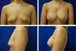 Breast_Augmentation_Case_97801