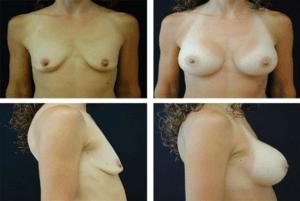 Breast_Augmentation_Case_9788