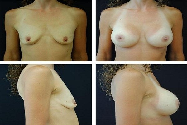 Breast_Augmentation_Case_9788