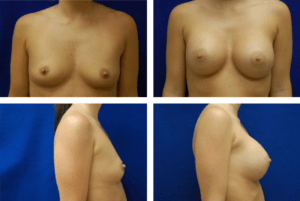 Breast_Augmentation_Case_9854