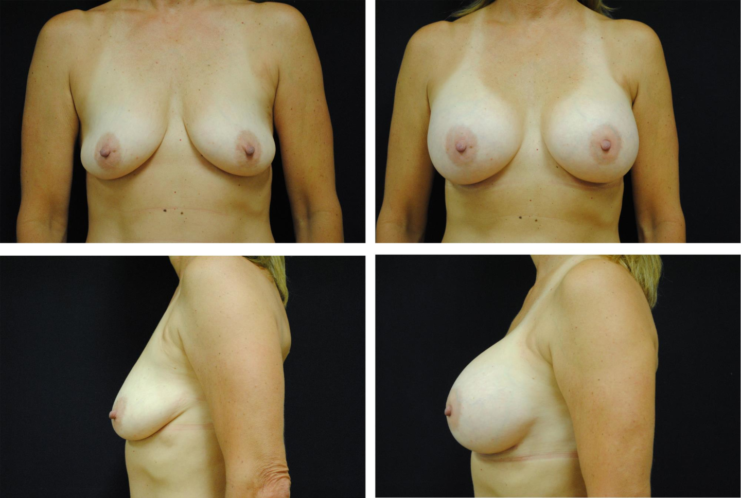 Breast_Augmentation_Case_99101
