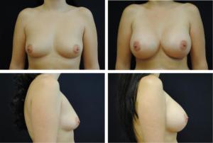 Breast_Augmentation_Case_99103