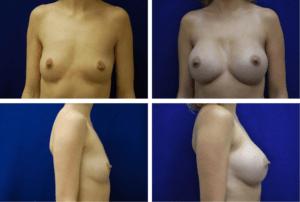 Breast_Augmentation_Case_99104