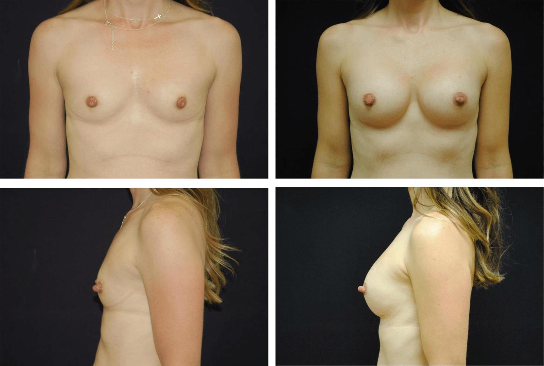 Breast_Augmentation_Case_99106