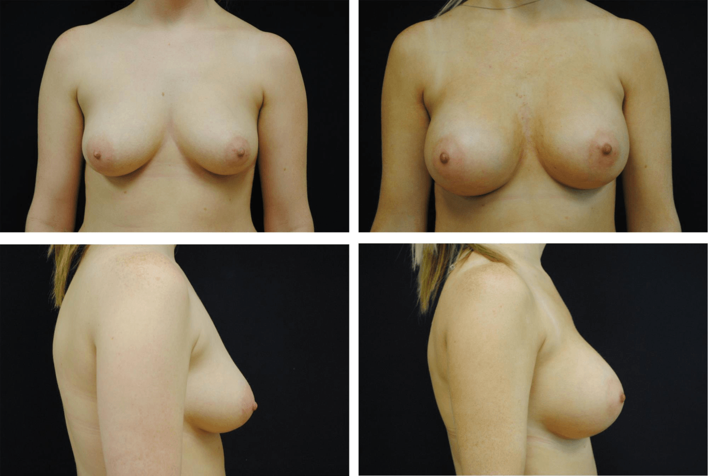 Breast_Augmentation_Case_99107