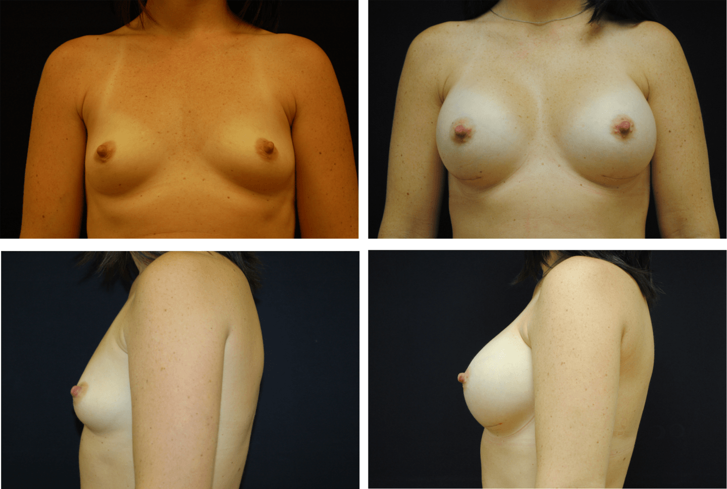 Breast_Augmentation_Case_99108