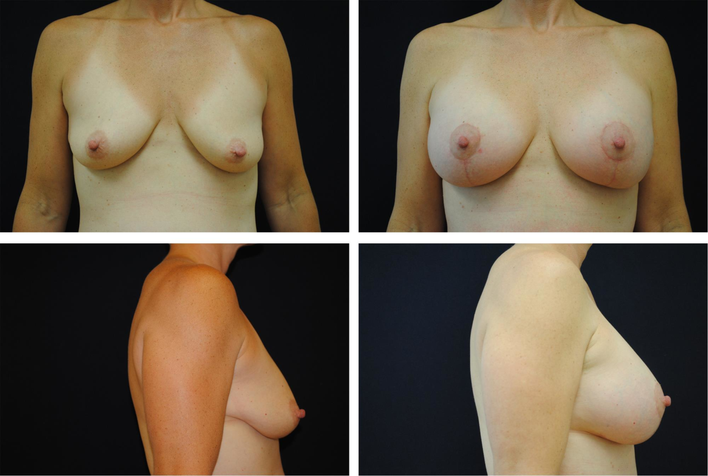 Breast_Augmentation_and_Lift_Case_15331