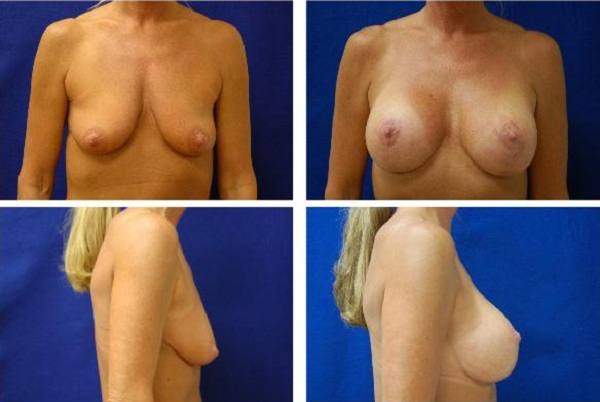 Breast_Augmentation_and_Lift_Case_425