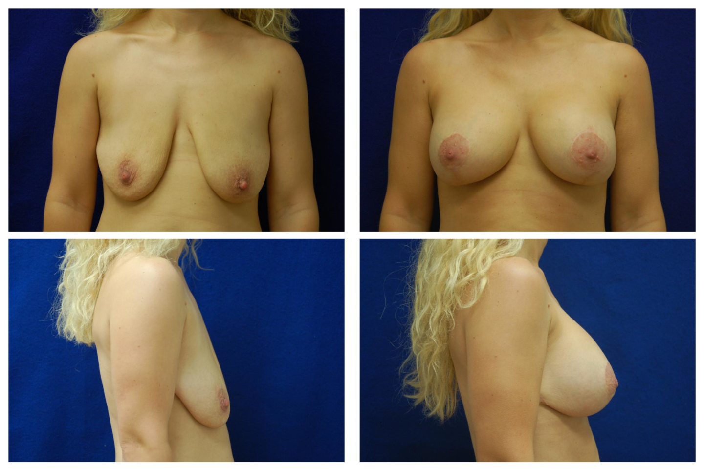 Breast_Augmentation_and_Lift_Case_431
