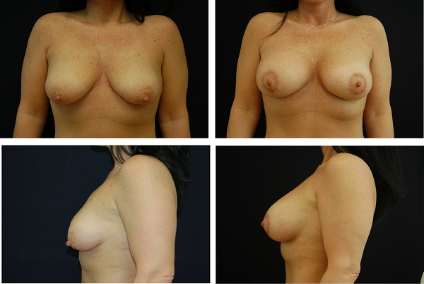 Breast_Augmentation_and_Lift_Case_75701