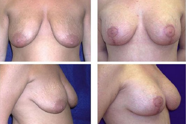 Breast_Augmentation_and_Lift_Case_801