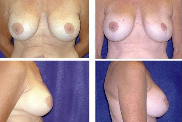 Breast_Augmentation_and_Lift_Case_803