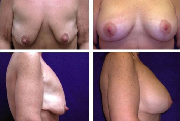 Breast_Augmentation_and_Lift_Case_804