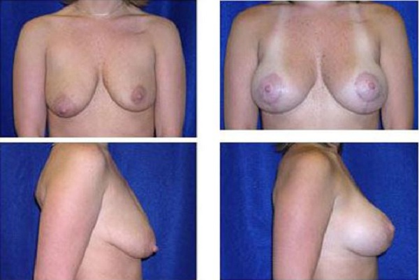 Breast_Augmentation_and_Lift_Case_806