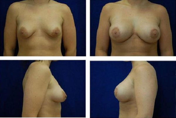 Breast_Augmentation_and_Lift_Case_808
