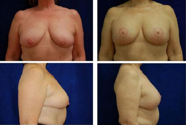 Breast_Augmentation_and_Lift_Case_809