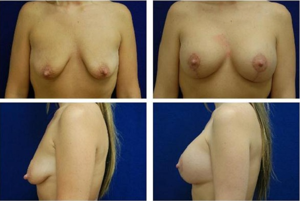 Breast_Augmentation_and_Lift_Case_811