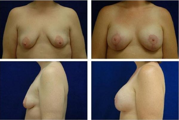 Breast_Augmentation_and_Lift_Case_812