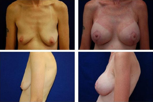 Breast_Augmentation_and_Lift_Case_813