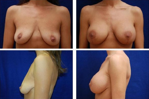 Breast_Augmentation_and_Lift_Case_814