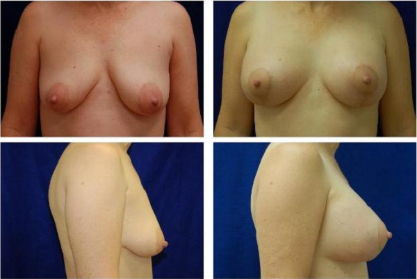 Breast_Augmentation_and_Lift_Case_815
