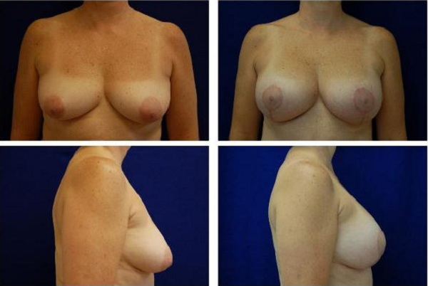 Breast_Augmentation_and_Lift_Case_816