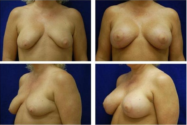 Breast_Augmentation_and_Lift_Case_818