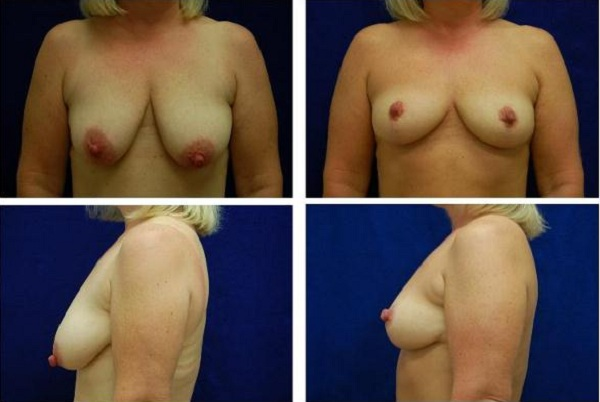 Breast_Augmentation_and_Lift_Case_819