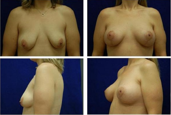 Breast_Augmentation_and_Lift_Case_820