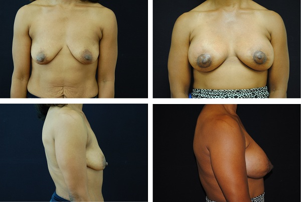 Breast_Augmentation_and_Lift_Case_82021