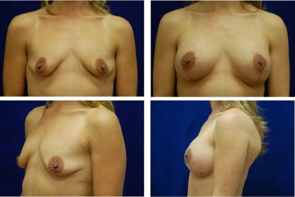 Breast_Augmentation_and_Lift_Case_844