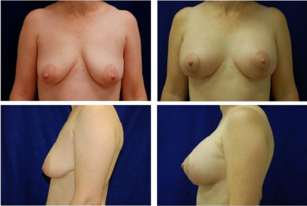Breast_Augmentation_and_Lift_Case_845