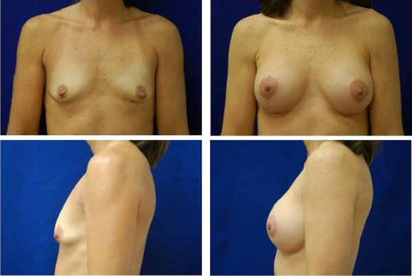 Breast_Augmentation_and_Lift_Case_846