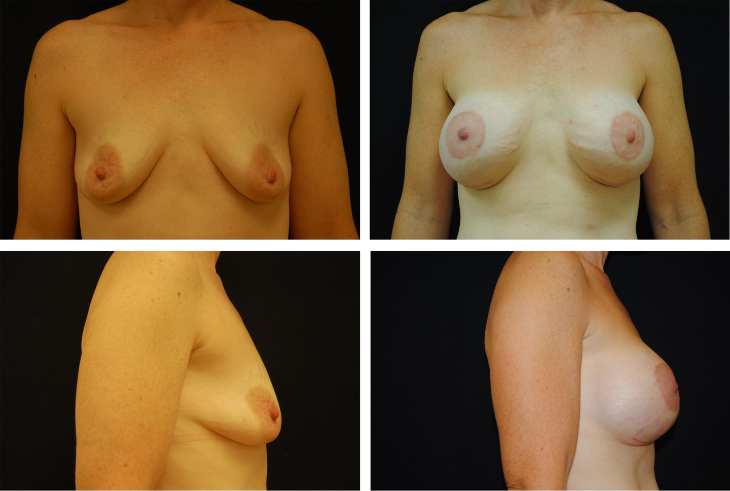 Breast_Augmentation_and_Lift_Case_88321