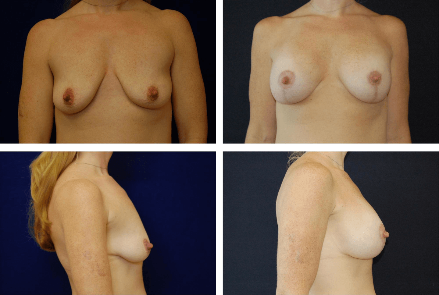 Breast_Augmentation_with_Lift_Case_73021
