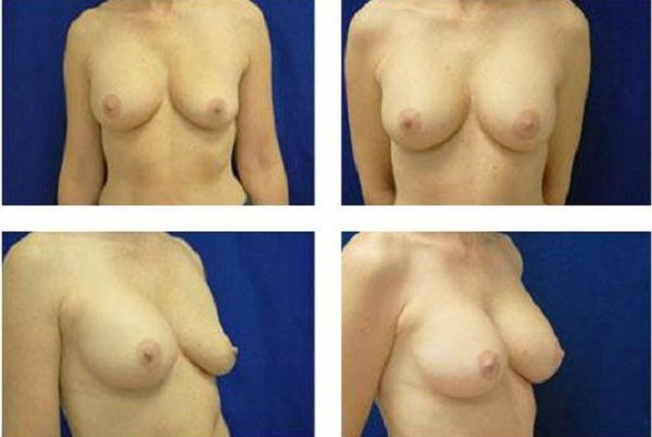 Breast_Implant_Remove_and_Replace_Case_805