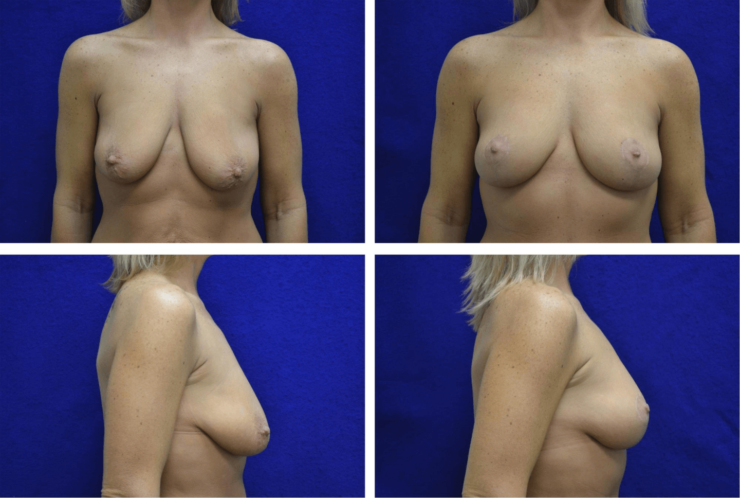 Breast_Lift_Case_30751