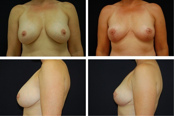 Breast_Lift_Case_31421