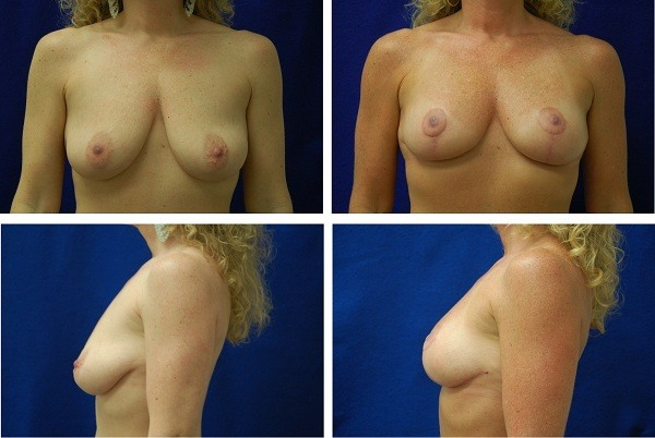 Breast_Lift_Case_56011