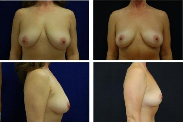 Breast_Lift_Case_711