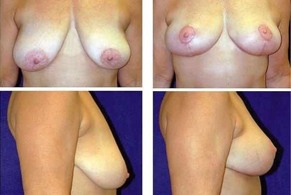 Breast_Lift_Case_804