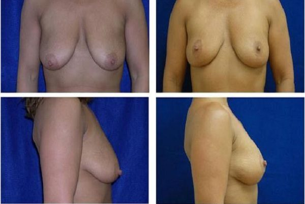 Breast_Lift_Case_810